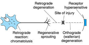 Figure 2: Retrograde degeneration and regenerative sprouting (Flor H, 2006) During amputation, peripheral nerves are severed causing massive tissue and neuronal injury, retrograde degeneration of the nerve, and regenerative sprouting. The proximal portion of the severed nerve eventually forms a neuroma, which is a nerve tumor that results from uncontrolled and disorganized proliferation of Schwann cells that forms when the axons cannot reconnect properly (Flor H, 2006).