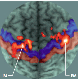 Figure 8: fMRI from study on telescoping (Flor H, 2002)